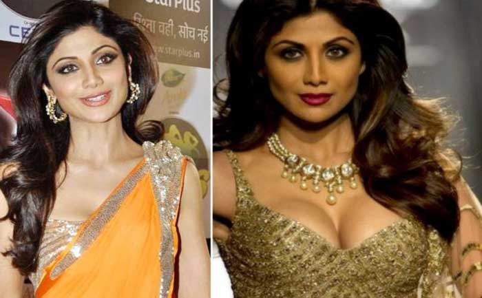 shilpa shetty before and after breast implants